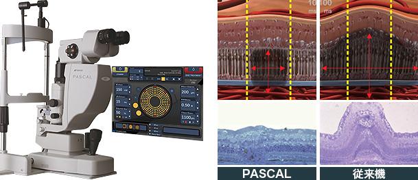 眼科用レーザー光凝固装置(PASCAL)
